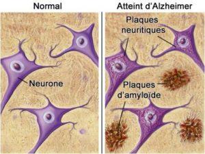 Alzheimer neurones